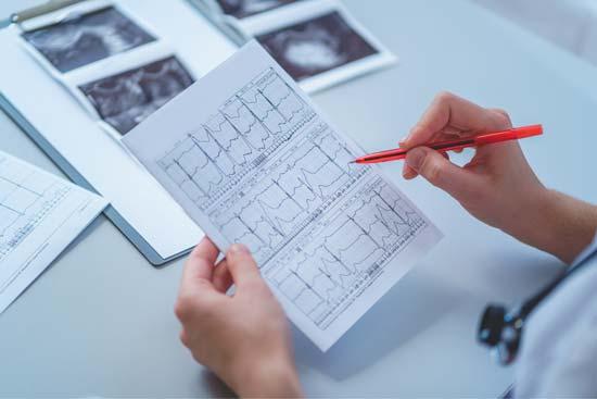 kardiologische Diagramme wwerden ausgewertet